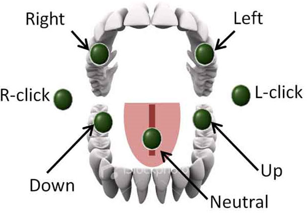 Thiết bị gắn trên vòm miệng giúp truyền tải thông điệp vận hành xe lăn