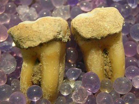 Phân tích những chiếc răng hóa thạch có thể giúp chúng ta hiểu biết về chế độ dinh dưỡng của người tiền sử.
