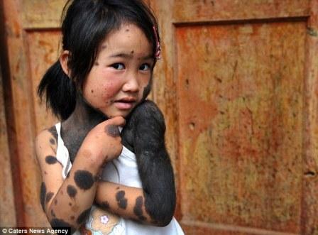 """Chứng bệnh lạ khiến bé gái thành """"người thú"""""""