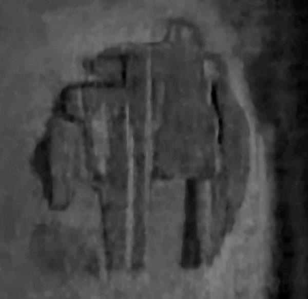 Hình ảnh vật thể lạ trên màn hình của thiết bị siêu âm.