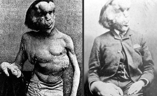 """Joseph Merrick đã dũng cảm sống với thân phận """"người voi"""""""